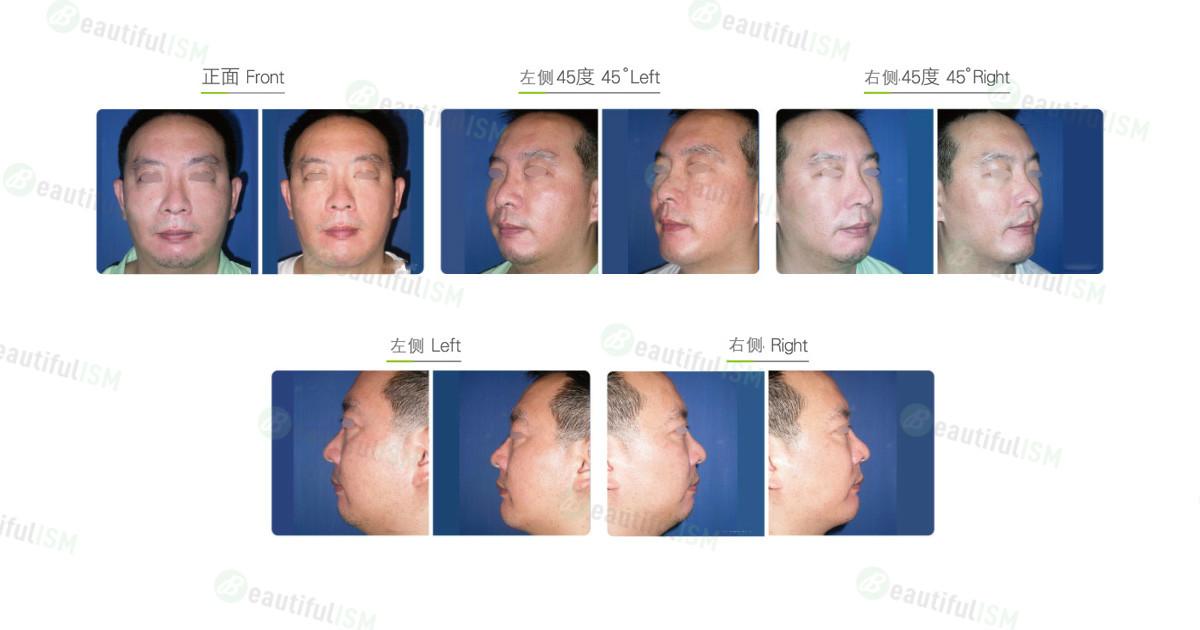垫下巴+人工骨假体植入(男)效果图,案例前后对比照片