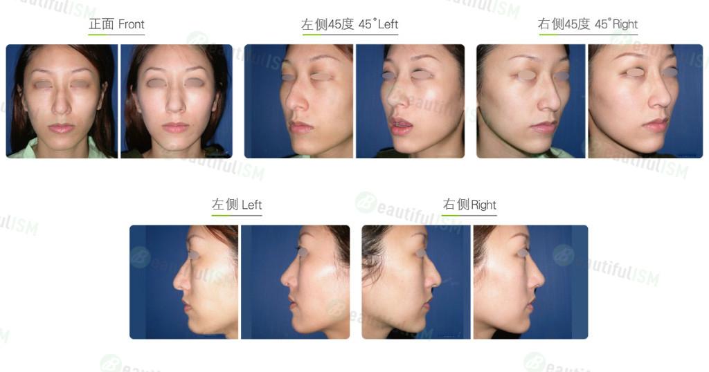 韩式鼻雕(女)案例效果图,手术前后对比照片