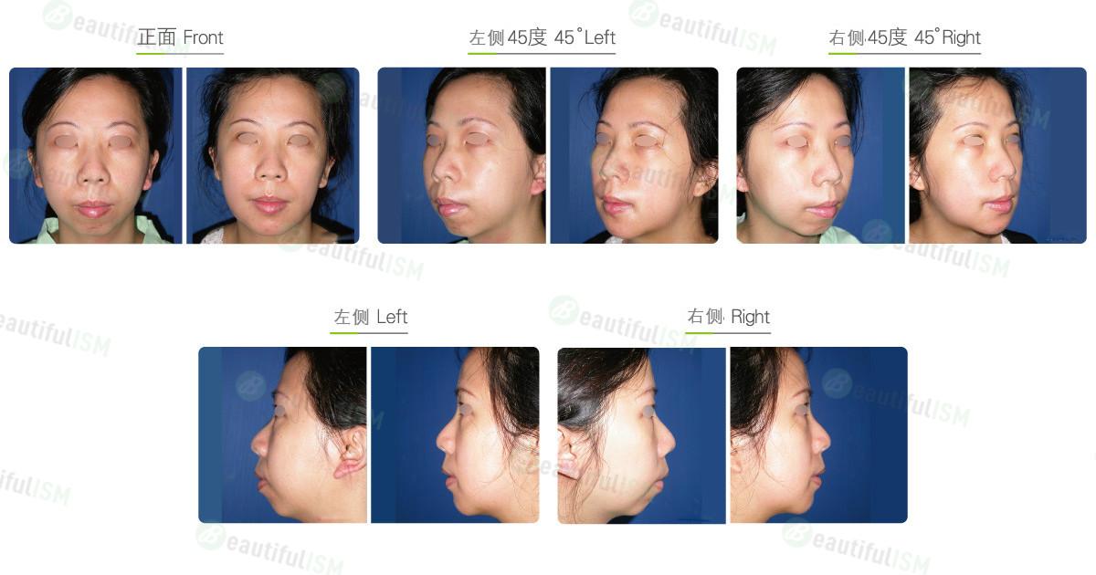 垫下巴+小颌骨重建(女)效果图,案例前后对比照片