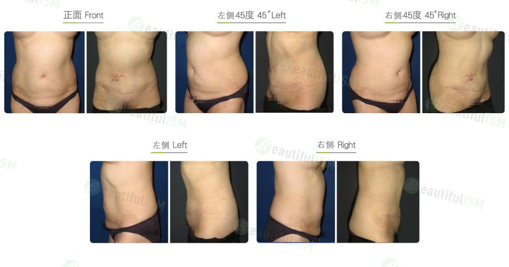 腰腹抽脂-后腰(女)效果图,案例前后对比照片