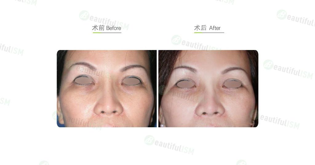 自体脂肪移植-脂肪填补泪沟凹陷(女)效果图,案例前后对比照片