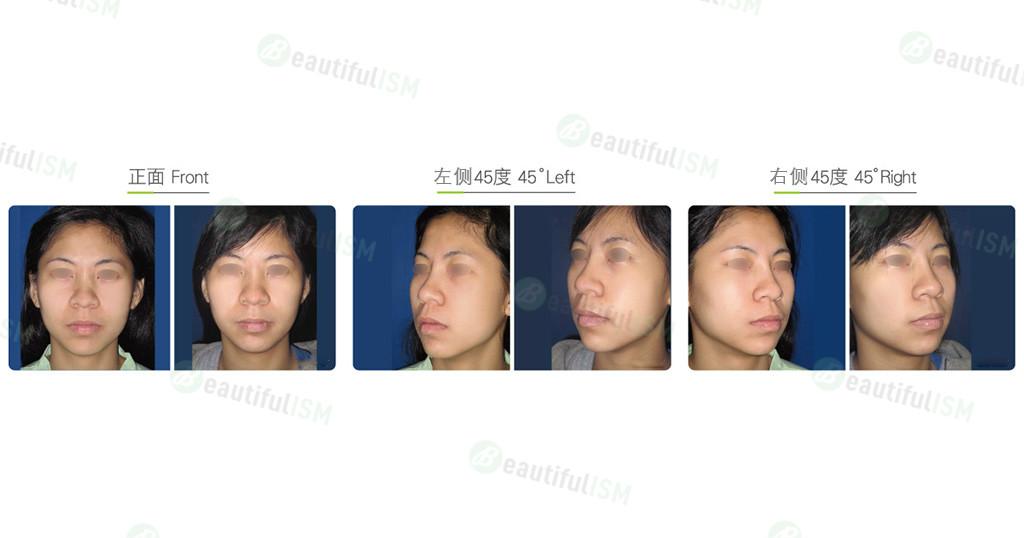 口内脂肪垫取出(女)效果图,案例前后对比照片