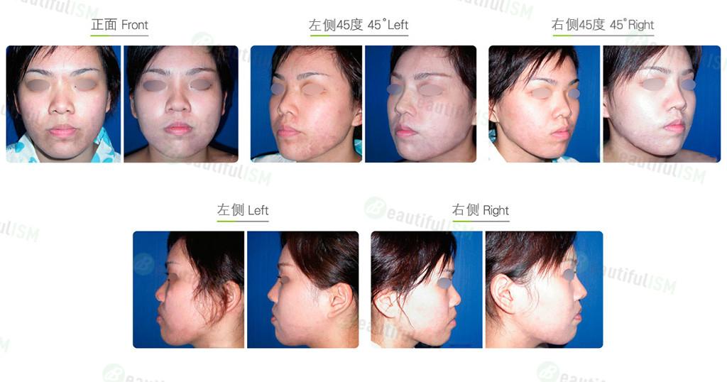 韩式两段式隆鼻(女)效果图,案例前后对比照片