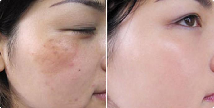 去痘-果酸焕肤效果图,案例前后对比照片