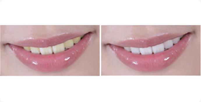 喷砂洗牙效果图,案例前后对比照片
