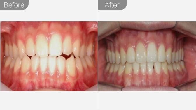 牙齿矫正-隐形矫正效果图,案例前后对比照片