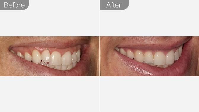 牙齿矫正-隐形托槽矫正效果图,案例前后对比照片