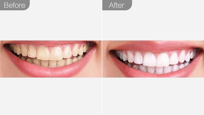 牙齿贴面-瓷贴面效果图,案例前后对比照片