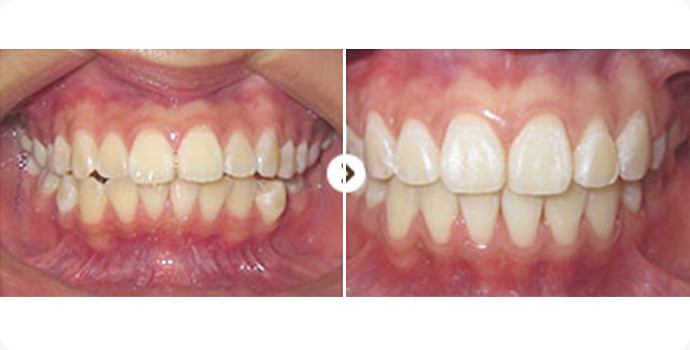 牙齿矫正-金属托槽矫正效果图,案例前后对比照片