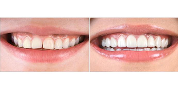 牙齿贴面-树脂贴面效果图,案例前后对比照片