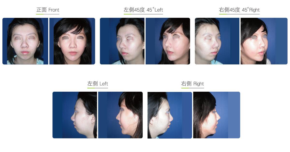全脸综合整形手术(女)效果图,案例前后对比照片