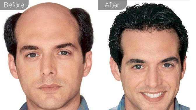头发种植(男)效果图,案例前后对比照片