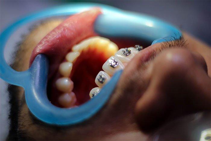 改善睡觉流口水矫正牙齿